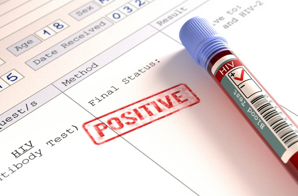 Preço dos antirretrovirais baixou mas Covid-19 pode afetar fornecimento